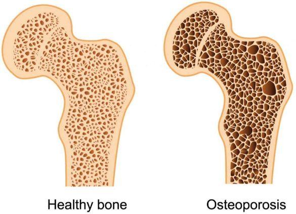 نقش TSP در پوکی استخوان