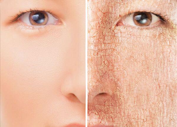 اثر سوربیتول برای پوست