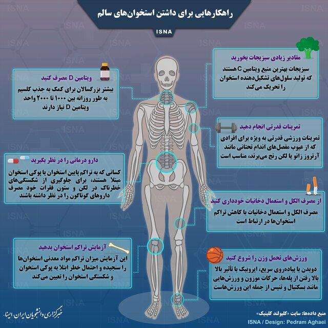 چگونه استخوان سالم داشته باشیم ؟ راه کارهایی برای داشتن استخوان سالم