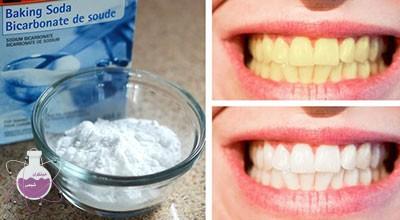 سدیم بی کربنات در دندان سازی