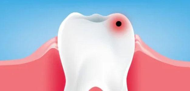 دهانشویه و جلوگیری از پوسیدگی
