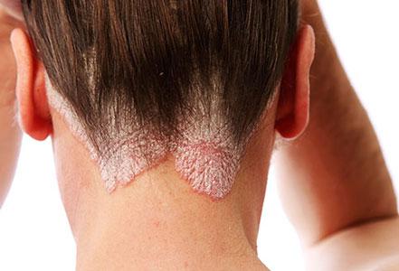 سالیسیلیک اسید در درمان پسوریازیس