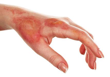خطرات آمونیاک برای پوست