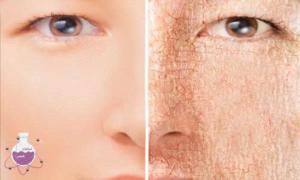 فواید سالیسیلیک اسید برای پوست